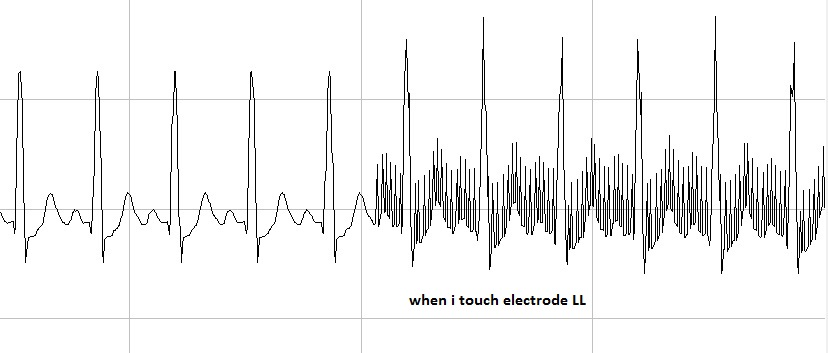 noise in the ecg signal - precision data converters forum - precision data converters